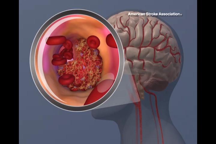 Un trombo occludente causa un ictus