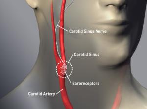 Il seno carotideo